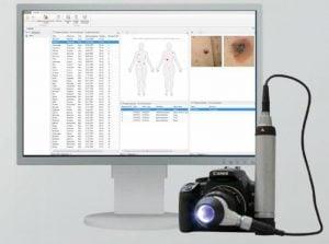 диагностика рака кожи в Клинике Спиженко