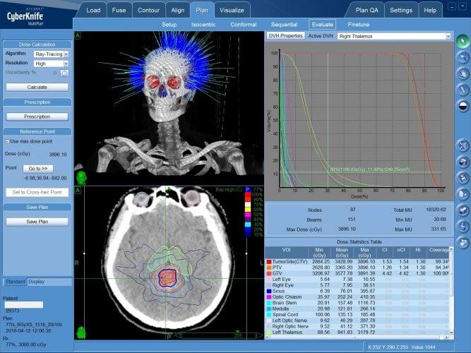 Герминома - радиохирургическое лечение опухоли мозга на КиберНоже без операции