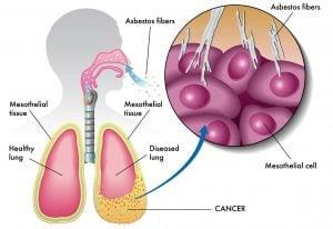 Мезотелиома плевры (эндотелиома, рак плевры): лечение, диагностика, симптомы