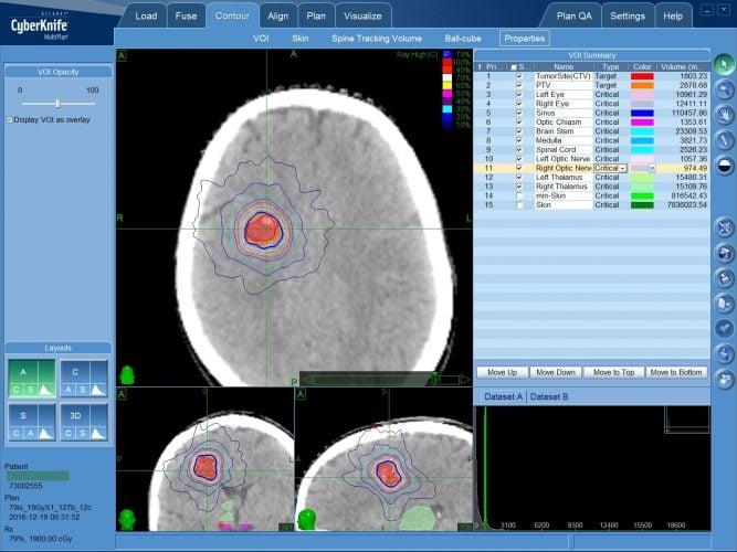 Артериовенозные мальформации: лечение АВМ на радиохирургической системе КиберНож