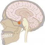 Аденома гипофиза: симптомы, диагностика, лечение