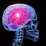 Анапластические астроцитомы: симптомы, диагностика, лечение