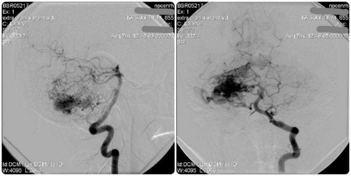 АВМ средних размеров нижних отделов мозжечка (Вертебральная ангиограмма, боковая и передне-задняя проекция)