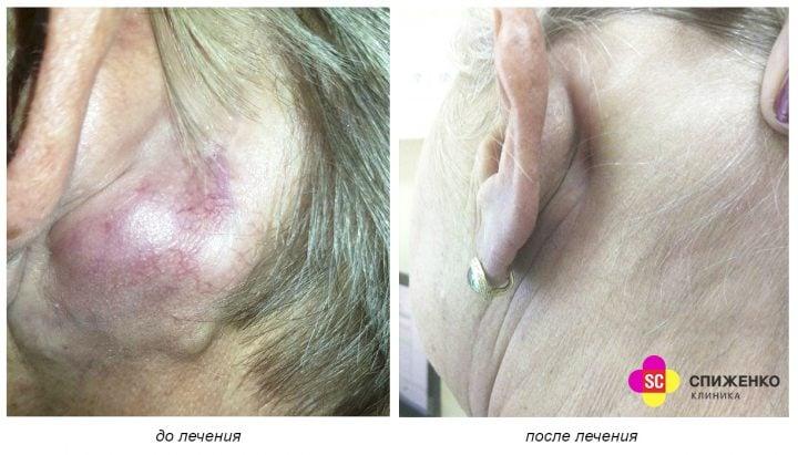 Базалиома (базальноклеточный рак кожи) – Лечение – Цена – Киев