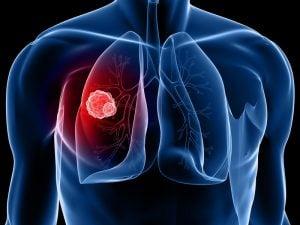 1-2 стадия немелкоклеточного рака лёгкого