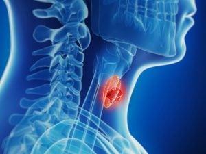 Недифференцированный рак щитовидной железы: лечение, диагностика, симптомы