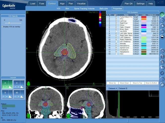 Лечение эпендимомы головного мозга на КиберНоже