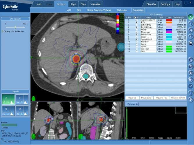 Единичные метастазы в надпочечник — радиохирургическое лечение без операции