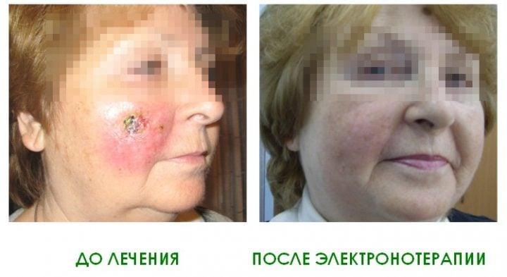 Результат лечения базалиомы электронами на линейном ускорителе в Клинике Спиженко