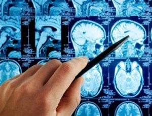 Ганглиобластома: лечение, диагностика, симптомы
