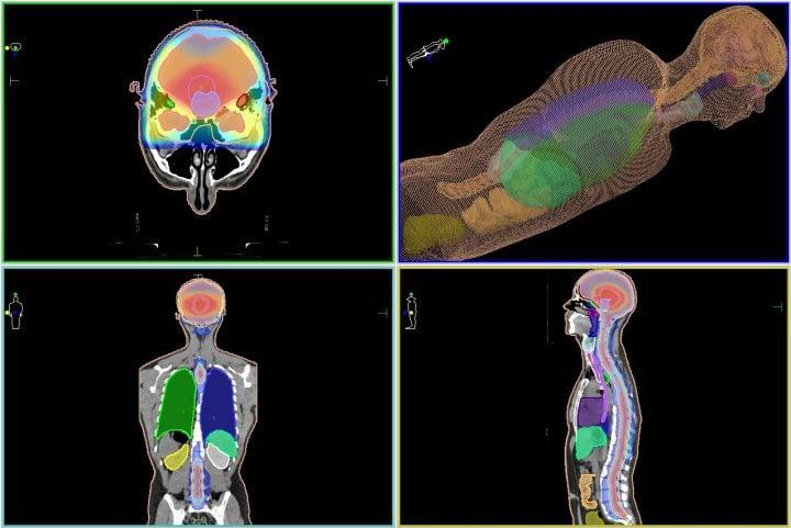Герминома - план лучевого лечения - высокоточная IMRT-лучевая терапия