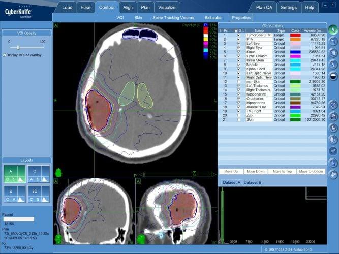 План лечения глиобластомы на КиберНоже (радиохирургия)