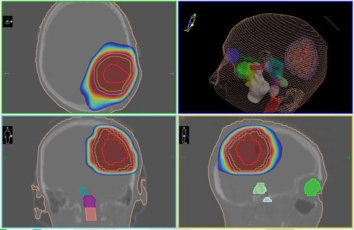 Схема лечения отека мозга