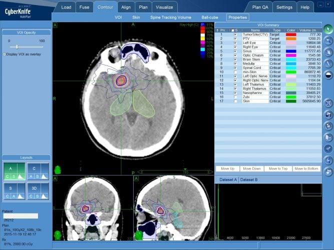 Радиохирургическое лечение каверномы без операции - план лечения на КиберНоже