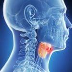 Рак гортани: лечение, симптомы, диагностика