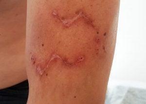Лучевая терапия при лечении рубцов