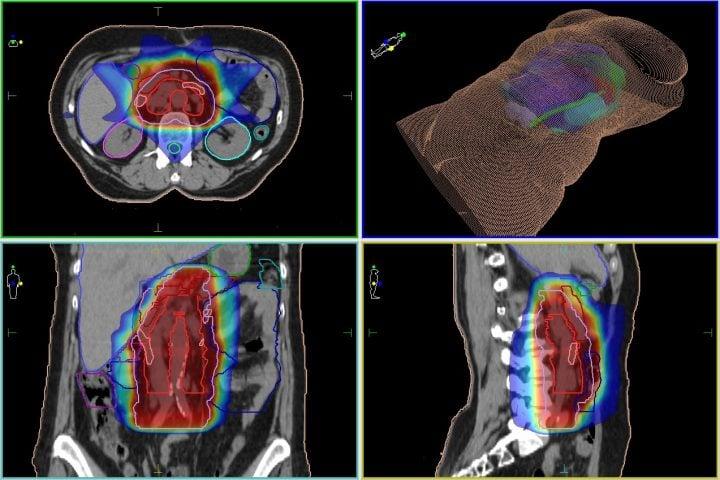 Метастазы рака груди в лимфоузлы и кости: лечение, диагностика