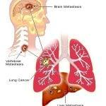 Единичные и множественные метастазы рака легких: лечение, диагностика