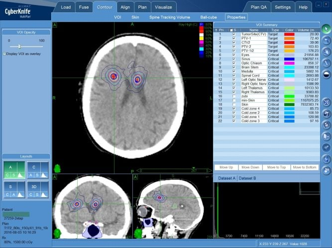 Метастазы в головной мозг - лечение КиберНожом