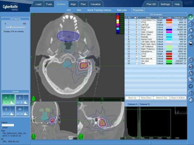 Цифровой план стереотаксического радиохирургического лечения менингиомы на КиберНоже в Клинкие Спиженко в Киеве
