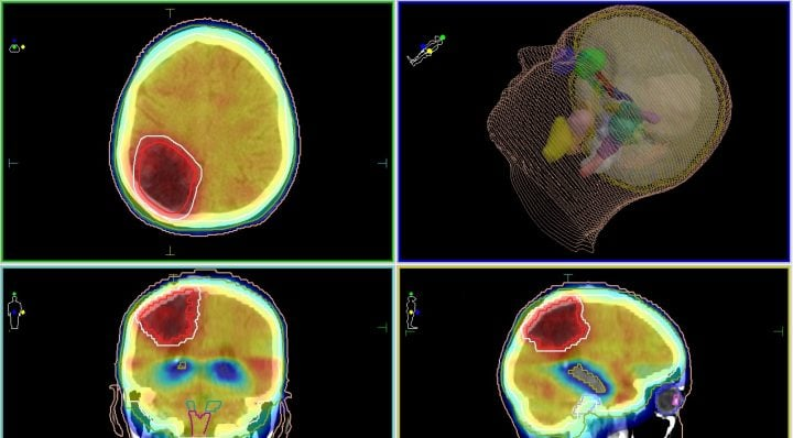 Лучевое лечение метастазов в головной мозг