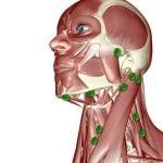 Метастазы в лимфоузлы - лечение на КиберНоже