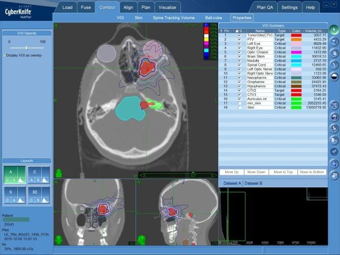 Радиохирургия (КиберНож) при нейрофиброме головного мозга