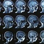 Злокачественные опухоли головного мозга 3-4 стадий
