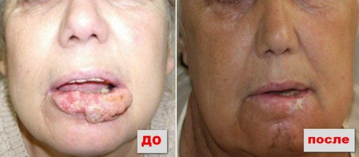 Результаты комбинированного лечения рака губы без операции на фото: электронотерапия + лучевая терапия