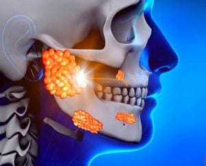 Рак слюнных желез - КиберНож заменяет операцию