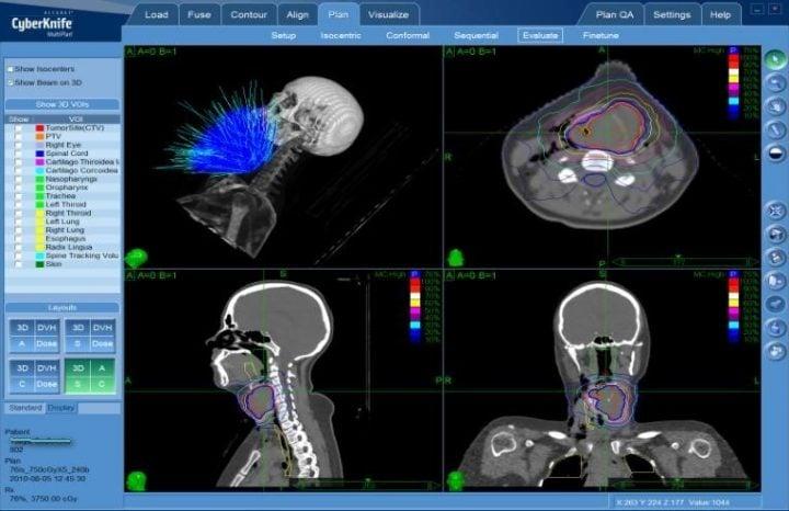 План лечения рака голосовых связок на КиберНоже (бесконтактная радиохирургия)