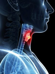 Рак горла (злокачественные опухоли гортани): лечение, диагностика, симптомы