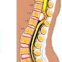 Спинальная менингиома (менингиома спинного мозга)