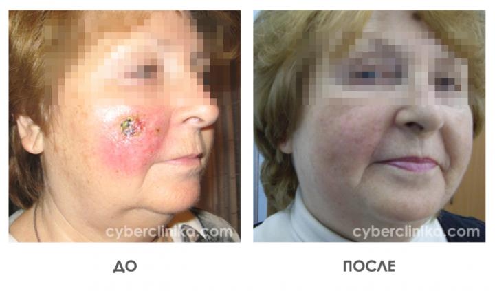 Результаты лечения рака кожи (электронотерапия на линейном ускорителе при базалиоме) - до и после лечения
