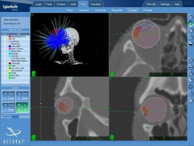Один из примеров компьютерного плана, по которому проводится радиохирургия увеальной меланомы на КиберНоже