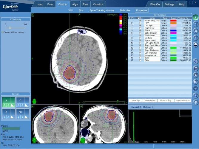 Что такое радиохирургия при опухоли головного мозга