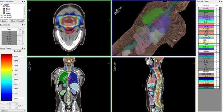 Эпендимома головного мозга - план лечения на линейном ускорителе, с распределением доз облучения для различных типов биологических тканей