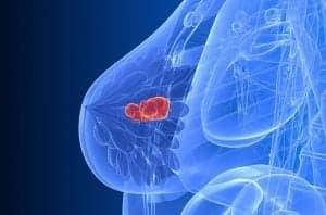 Рак груди (рак молочной железы): лечение, диагностика, симптомы