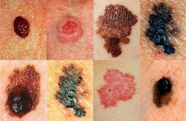 Меланома - каждая из этих опухолей, несмотря на небольшой размер, требует срочного лечения