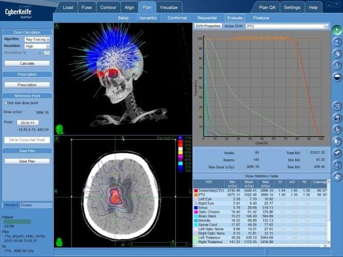 КиберНож - безоперационное лечение нейроцитомы
