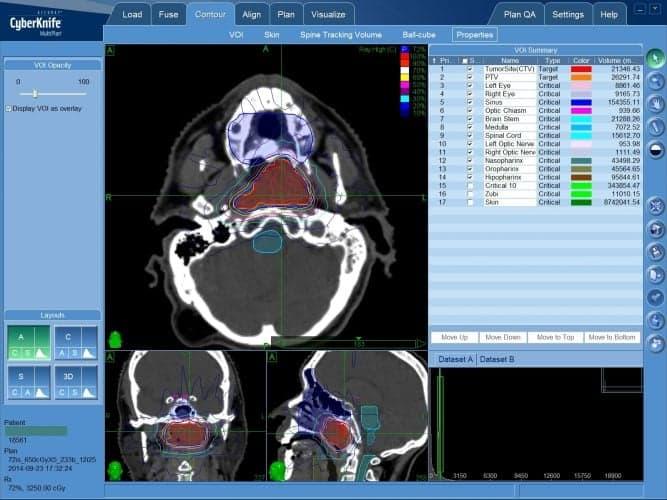 КиберНож в лечении опухолей пазух носоглотки — план лечения