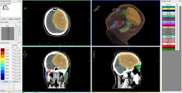 Рак головного мозга — план лечения на линейном ускорителе, с распределением доз облучения для различных типов биологических тканей