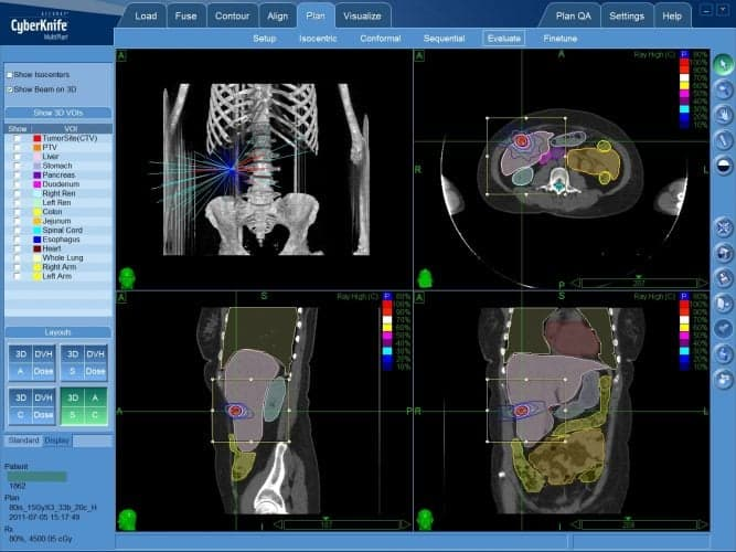 Рак печени — КиберНож предлагает лечение без операции