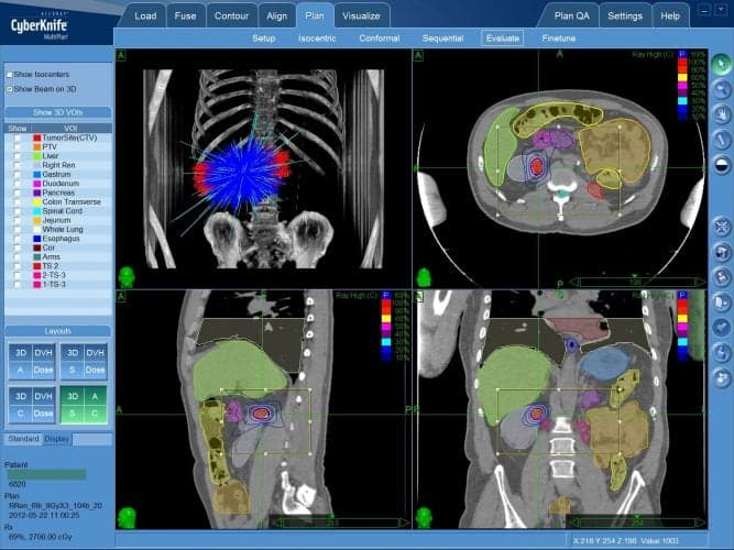 Органосохраняющее лечение рака почки - план радиохирургического лечения на КиберНоже, в зону, ограниченную красной линией показана граница опухоли. Внутрь этой зоны будет подана высокая доза излучения.