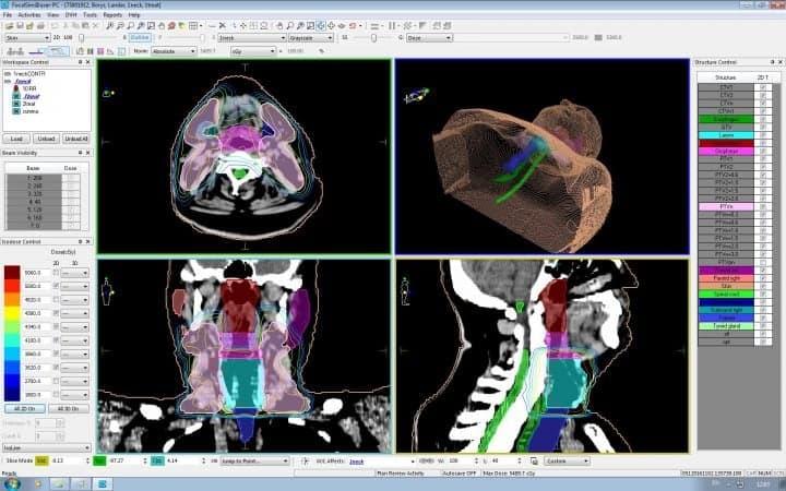 Рак гортани — план лечения на линейном ускорителе, с распределением доз облучения для различных типов биологических тканей