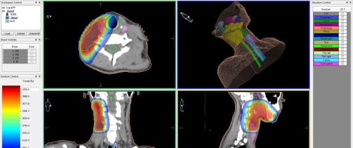 Рак слюнных желез — план лечения на линейном ускорителе, с распределением доз облучения для различных типов биологических тканей