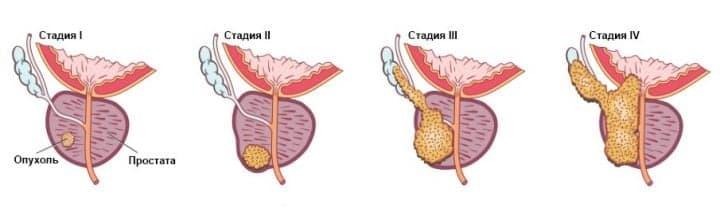 Рак простаты: лечение, диагностика, симптомы