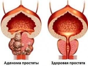 Аденома простаты (аденома предстательной железы)