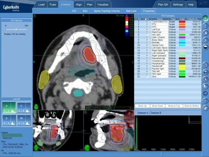 Рак языка - лечение на КиберНоже (радиохирургия)