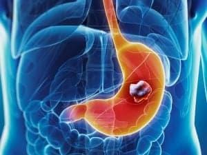 Лечение рака желудка - хирургия